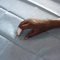11. ruka u mozkové obrny po operaci