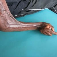 12. deformace ruky po kousnutí jedovatým hadem
