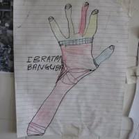 obrázek poraněné ruky očima pacienta