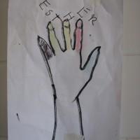 xobrázek poraněné ruky očima pacienta