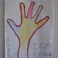 yobrázek poraněné ruky očima pacienta